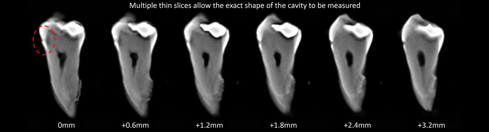 IDS-cavity-slive-anno-01