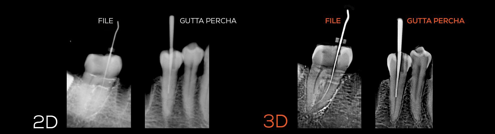 IDS-gutta-percha-02